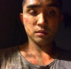 Gay Man Says Assault in WeHo Last Night Was Hate Crime
