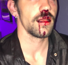 Young  Man Assaulted on Santa Monica Blvd.