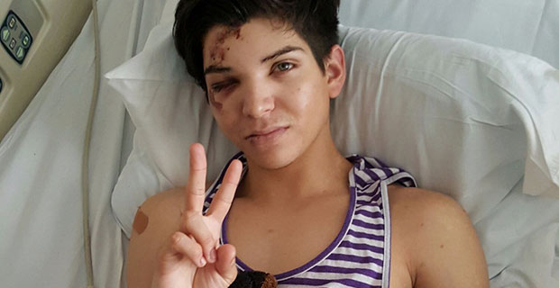 Anthony Villegas, 23, in the hospital after an assault in West Hollywood.