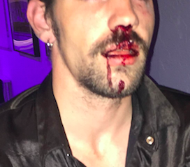 This photo of Cory Stedman taken after the assault has been heavily edited out of respect for his privacy.